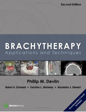Devita hellman and rosenbergs cancer principles and practice of brachytherapy second edition applications and techniques 2nd edition fandeluxe Choice Image